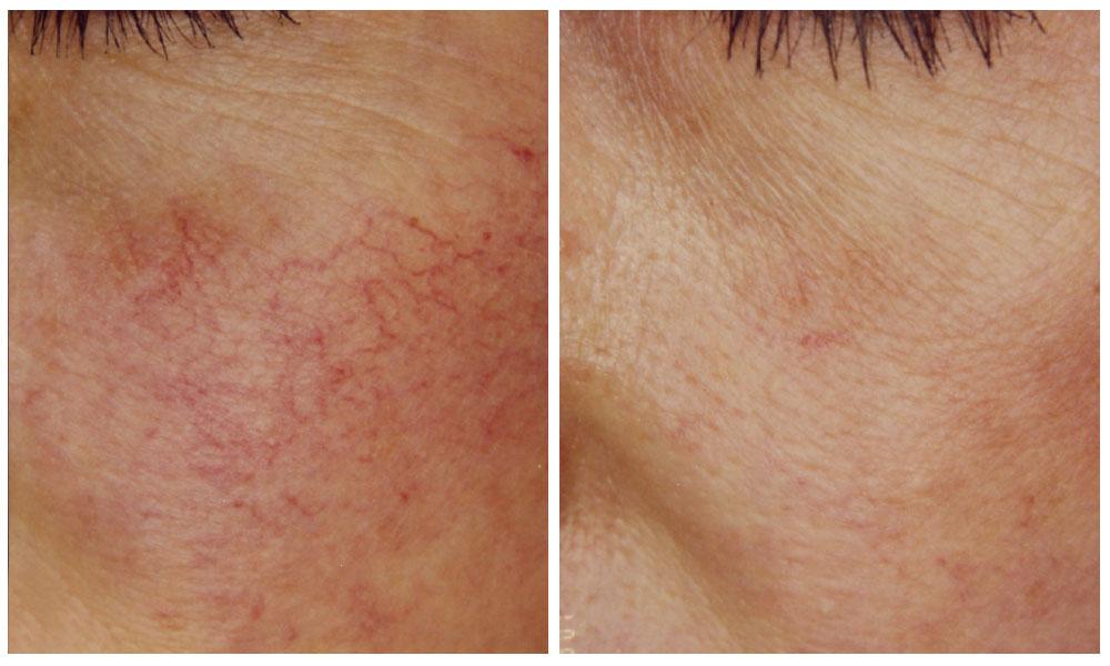 Decolorazione di cosmetici coreani per la pelle di faccia