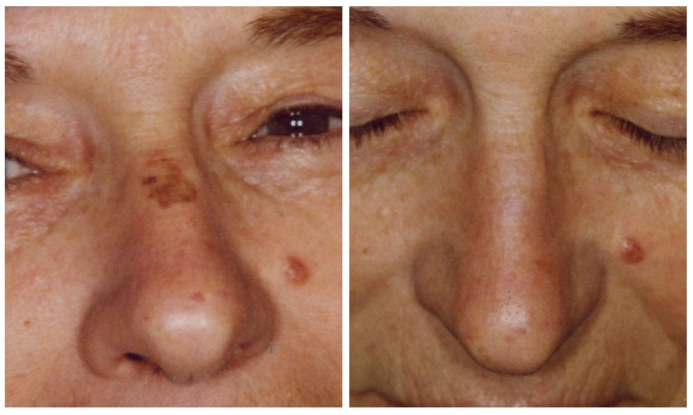 Sciocchezze per eliminazione di posti di pigmentary