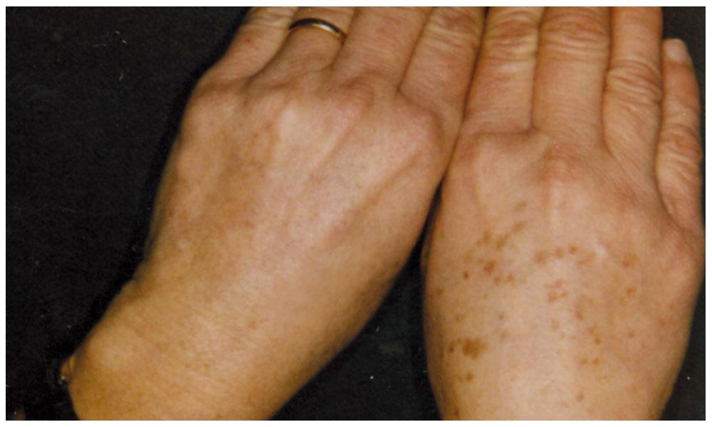 Raddoppi la terapia antiagregantny a trombosi