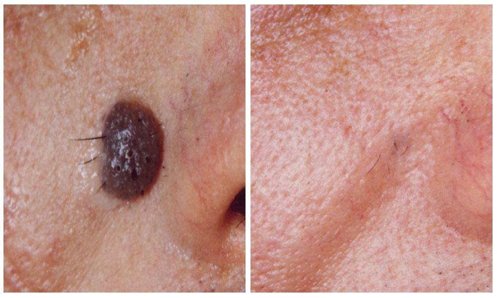 La disposizione di pigmentary nota su una faccia